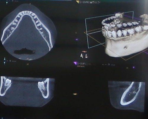 digitale-volumentomographie